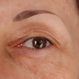 Exemple d'oeil mature